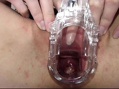 Gyno bauble by nature the brush loved vagina